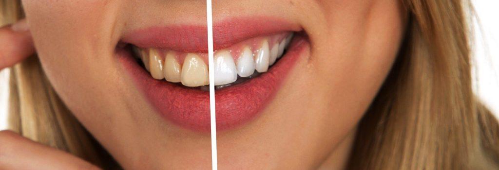 witte tanden.jpg